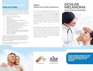 Occular Melanoma