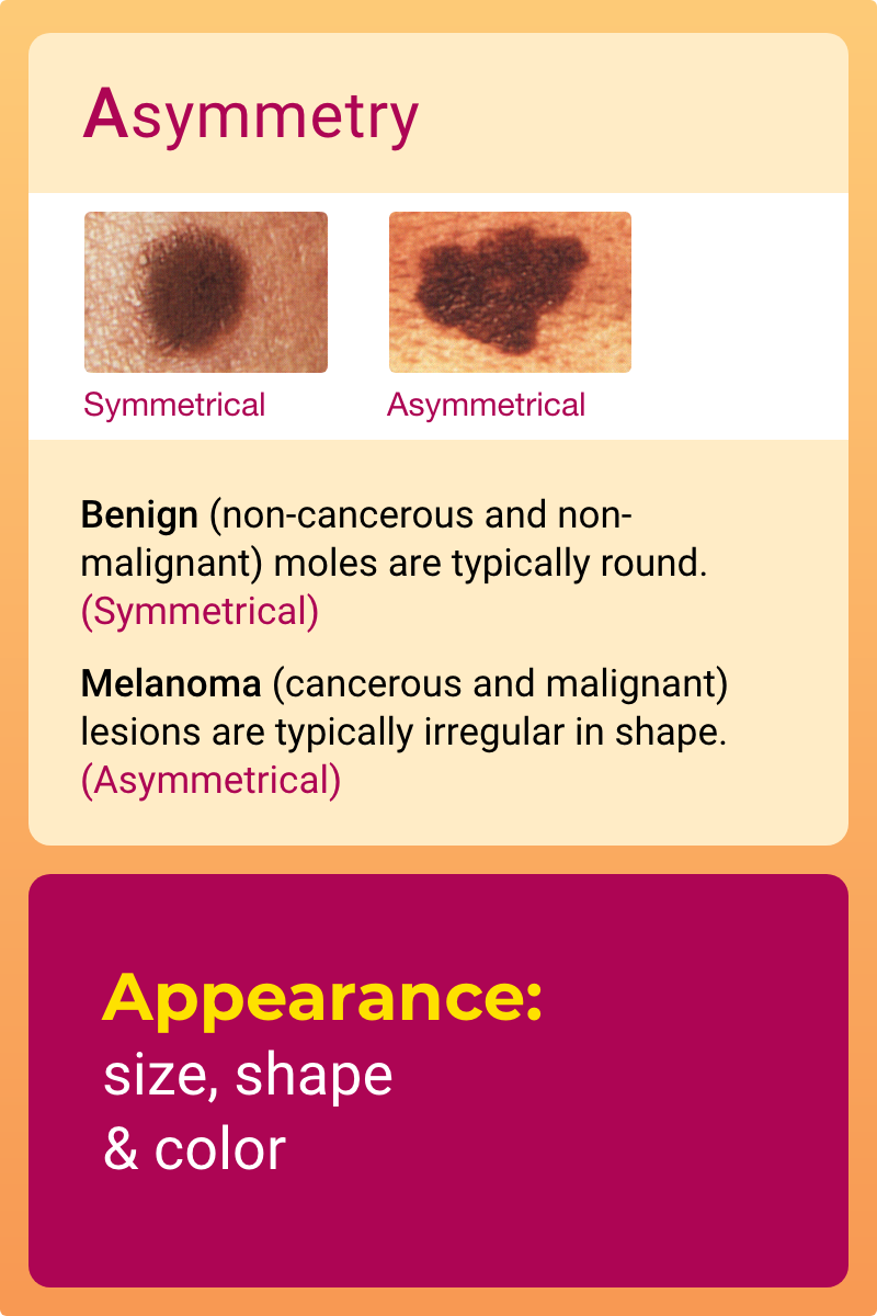 ABCDEs Characteristic 1 - Asymmetry