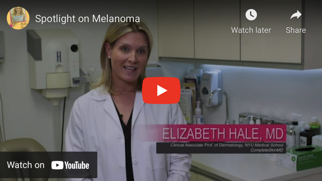 PBS Spotlight on Melanoma Image